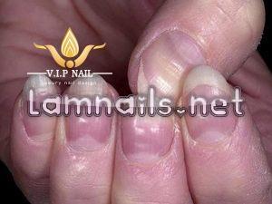 bệnh về móng - baogiadinh.vn