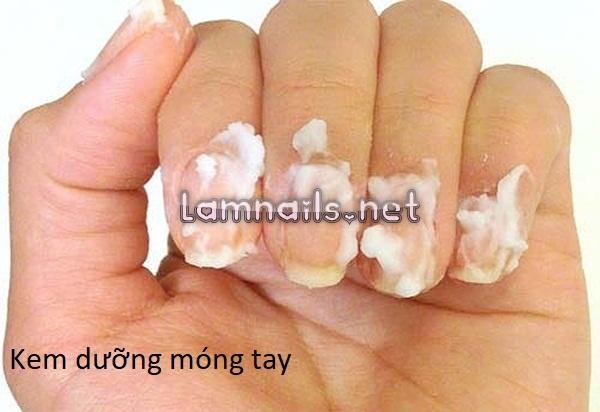 Top 8 những loại kem dưỡng móng tay hiệu quả được nhiều chị em lựa chọn